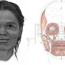بازسازی چهره