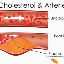 دو نوع کلسترول در خون وجود دارد که حفظ تعادل صحیح بین آنها برای حفظ سلامت بدن، ضروری است. کلسترول خوب (HDL) به دفع و کاهش کلسترول مازاد از بدن کمک میکند