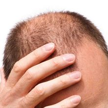 محققان پژوهشی جدید با کشف عملکرد ناشناختهای از این سلولها دریافتند این سلولها که التهاب را در بدن کنترل میکنند، کلیدی برای رشد مو و درمان ریزش مو هستند