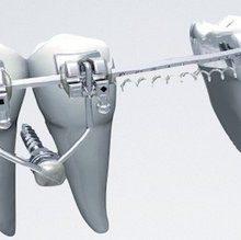 محققان مرکز رشد دانشگاه آزاد اسلامی واحد زنجان با استفاده از هیدروکسید کلسیم موفق به تولید چسب پانسمان برای کاهش فوری دردهای دندانی شدند.