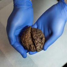 مغز انسان که به طور طبیعی به مرور زمان از بین نرفته و شکل طبیعی خود را حفظ کنند بسیار نادر هستند و تنها ۱۰۰ مورد ثبت شده در این خصوص در جهان وجود دارد.