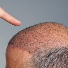 رییس اتحادیه آرایشگران و پیرایشگران مردانه با اشاره به تعطیلی برخی مراکز غیرمجازی که در حوزه کاشت مو فعالیت داشتند، تاکید کرد: لازم است پیش از انجام ...