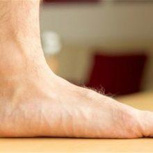 من در حین کار زیاد سرپا هستم و راه میروم، همیشه کف پاهایم شدیداً گُرگرفته هستند؛ در این مطلب، نحوه درمان گُرگرفتگی کف پا را خواهیم خواند.
