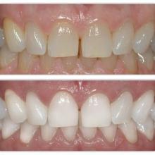 بیلیچینگ دندان معمولاً به دو روش کلی داخل مطب و یا در خانه انجام میشود که در نوع داخل مطب از ماده سفید کننده با غلظت بالا تحت نظارت دندانپزشک