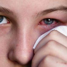 """لنزهای زیبایی چشم که """"لنزهای فان"""" یا فانتزی نیز نامیده میشوند، ممکن است برای استفاده در مراسم و جشنها مناسب به نظر برسند اما میتوانند به چشم آسیب برسانند"""