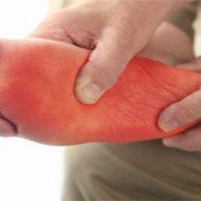 دکتر غلامرضا زمانی عضو انجمن صنفی جراحان عمومی ، گفت: پارستزی، اصطلاح درمانی برای احساس گرما و درد و نیز احساس سوزن سوزن شدن کف پا یا مورمور شدن است.