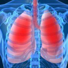 مردانی که بیش از اندازه مکمل های ویتامین ب 6 و بی 12 مصرف می کنند ، به ویژه مردان سیگاری ، بیش از دیگران در معرض خطر ابتلای به سرطان ریه قرار دارند.