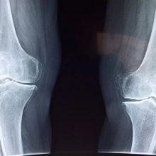 محققان به تازگی به این نتیجه رسیدهاند که میزان جاذبه موجود در سطح زمین، این سیاره را به بهترین مکان در هستی برای درمان شکستگی استخوانی تبدیل کرده است.