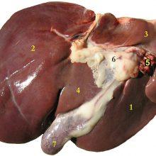 آسیب کبدیبر جریان خون طبیعی موجود در کبد اثر میگذارد و فشار خون در رگهایی افزایش مییابد که خون را به روده،طحالو کبد حمل می کنند. این روند سبب بزرگ شدن کبد می شود