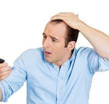 ریزش مو ممکن است به علت کمبود مواد معدنی رخ دهد، که این کمبود میتواند یا در نتیجهی یک رژیم غذایی فقیر ایجاد شود و یا مشکل جذب مواد معدنی وجود داشته باشد.