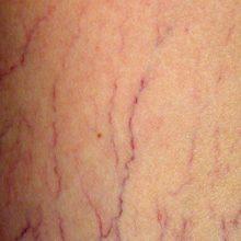 واریس سیاهرگها با افزایش احتمال لخته شدن خون مرتبط است.