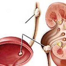 مبتلایان به التهابات کلیوی و سنگ کلیه از مصرف زیاد کافئین و همچنین از مصرف مُسکن خودداری کنند زیرا قرص های مسکن سنگ ها را سفت کرده