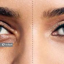 یک متخصص پوست گفت: کم خونی ،کم کاری تیروئید ،کمبود ویتامین هایی مانند آهن از جمله علل سیاهی چشم محسوب می شوند.