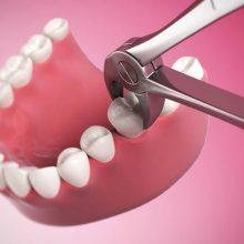 مرگ بعد از کشیدن 5 دندان