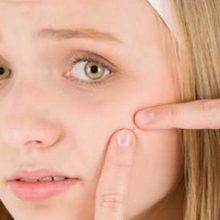 چند روش مناسب درمان و کاهش خارش جوش