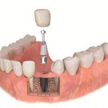 تفاوت ایمپلنت ثابت و متحرک / روش کاشت ایمپلنت در افرادی که دندانی در دهان ندارند