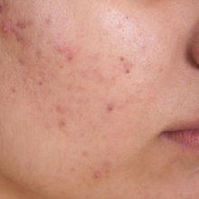 در افرادی که دارای پوست چرب هستند غدد چربی پوست مقدار زیادی سبوم تولید میکنند و به مسدود شدن منافذ پوست و در نهایت آکنه منجر میشود.