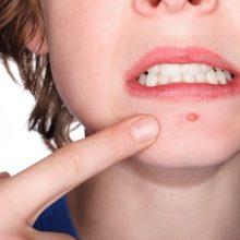 جوش و آکنه صورت به علل گوناگونی بستگی دارد، گاهی به سبب رژیم غذایی نامناسب و گاهی به دلیل مشکلات داخلی بدن بوجود میآید.